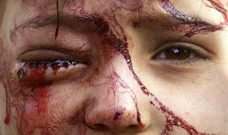 伊拉克儿童在战争中受伤